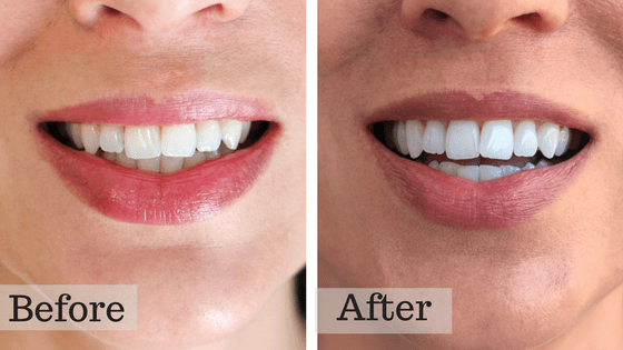 Smile Brilliant, At Home Teeth Whitening